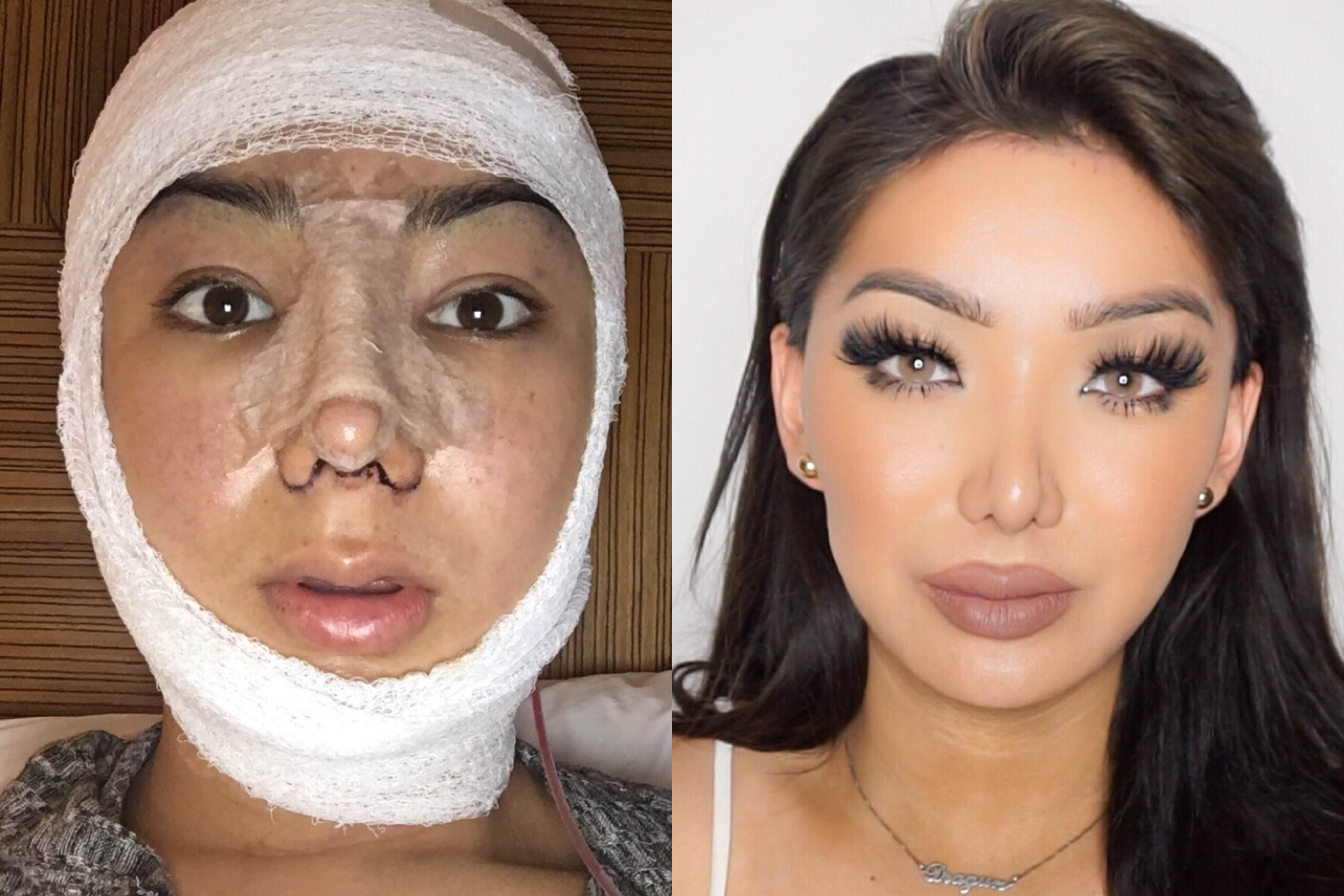 face plastic surgery before and after photo - 1