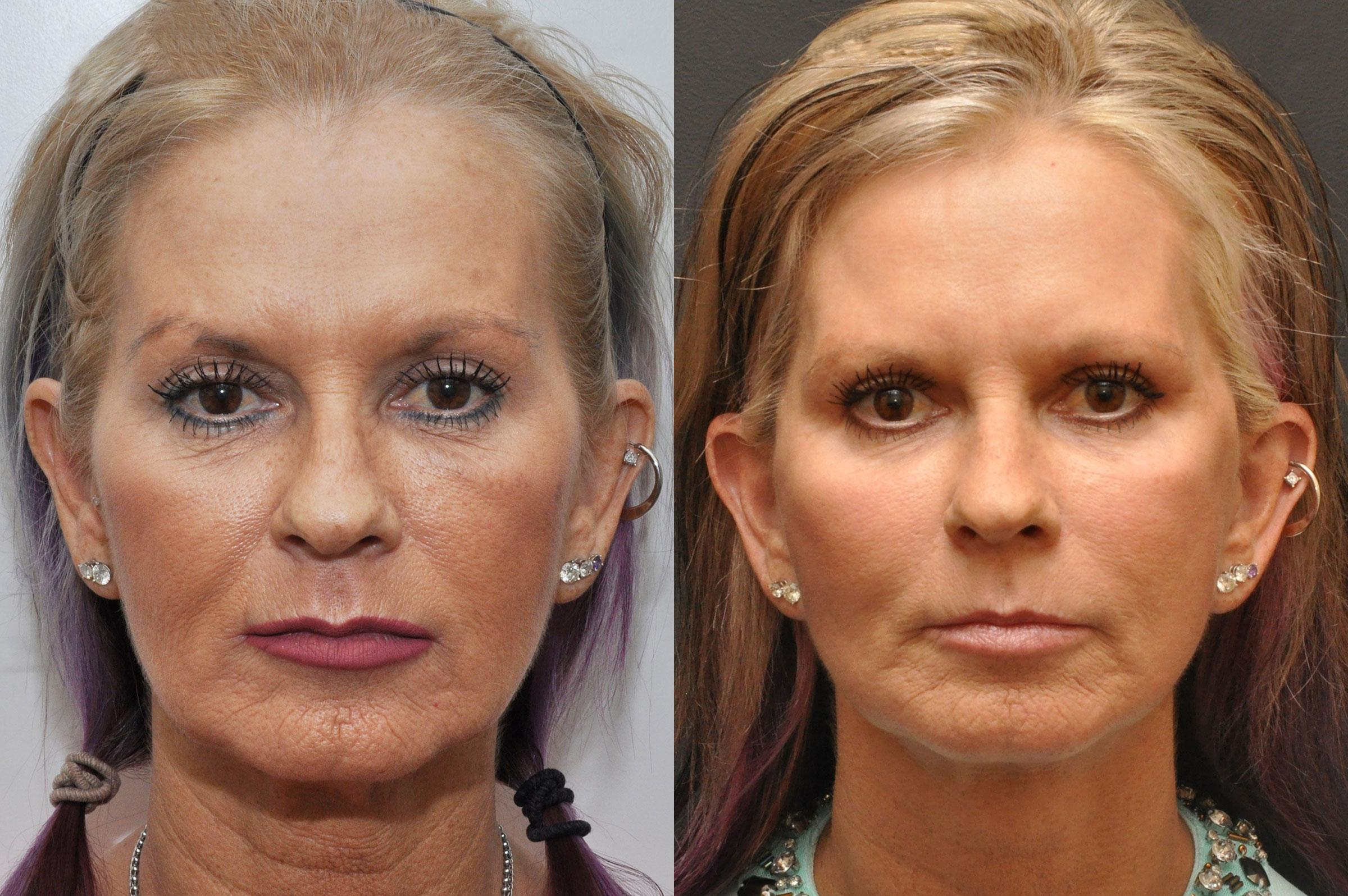 facial plastic surgery before and after photo - 1