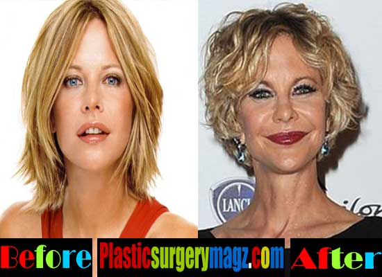 facial plastic surgery procedures photo - 1
