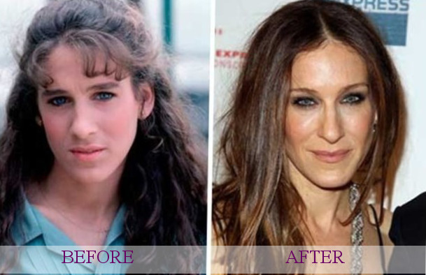 famous plastic surgery photo - 1