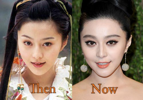 fan bingbing plastic surgery photo - 1