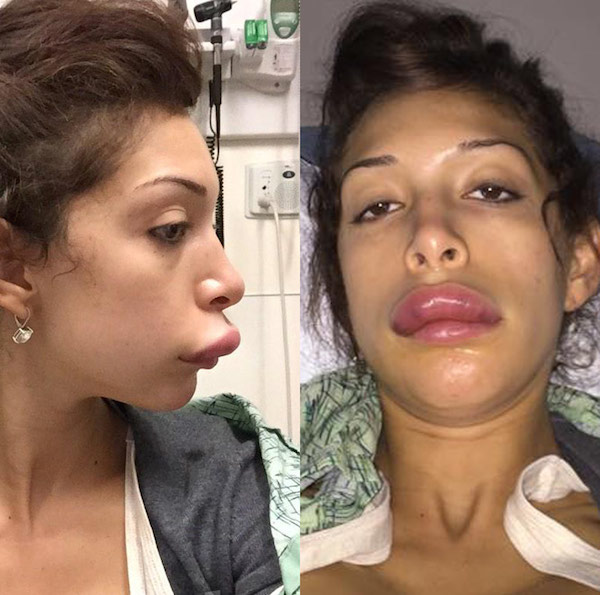 farrah abraham plastic surgery photo - 1