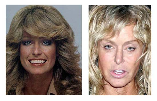 farrah fawcett plastic surgery photo - 1