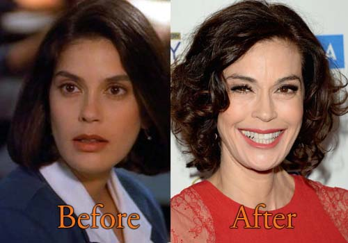 fisher plastic surgery photo - 1