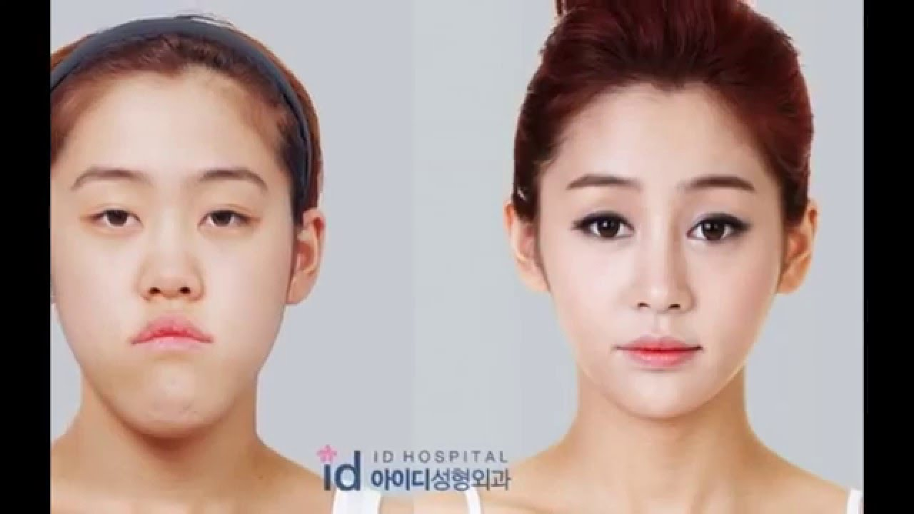 free plastic surgery makeover photo - 1