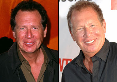 garry shandling plastic surgery photo - 1