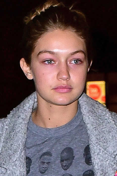 gigi hadid plastic surgery photo - 1