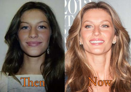 gisele bundchen plastic surgery photo - 1