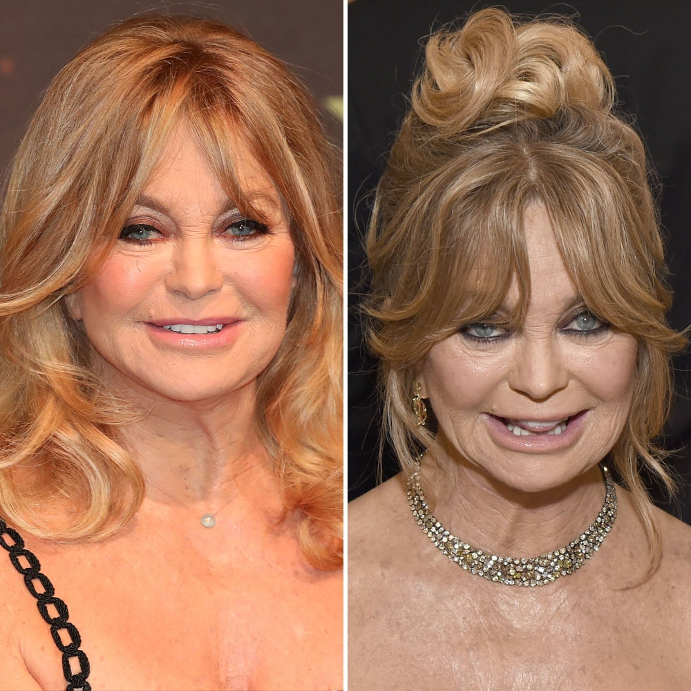 goldie hawn plastic surgery photo - 1