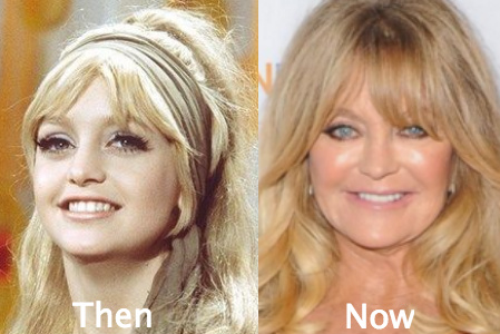 goldie hawn plastic surgery golden globes photo - 1