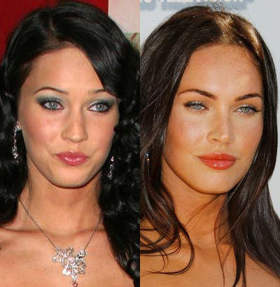 good plastic surgery photo - 1
