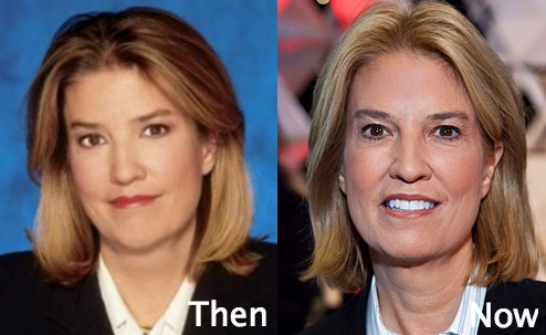 greta van susteren plastic surgery photo - 1