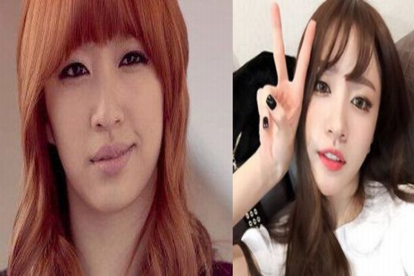 hani plastic surgery photo - 1