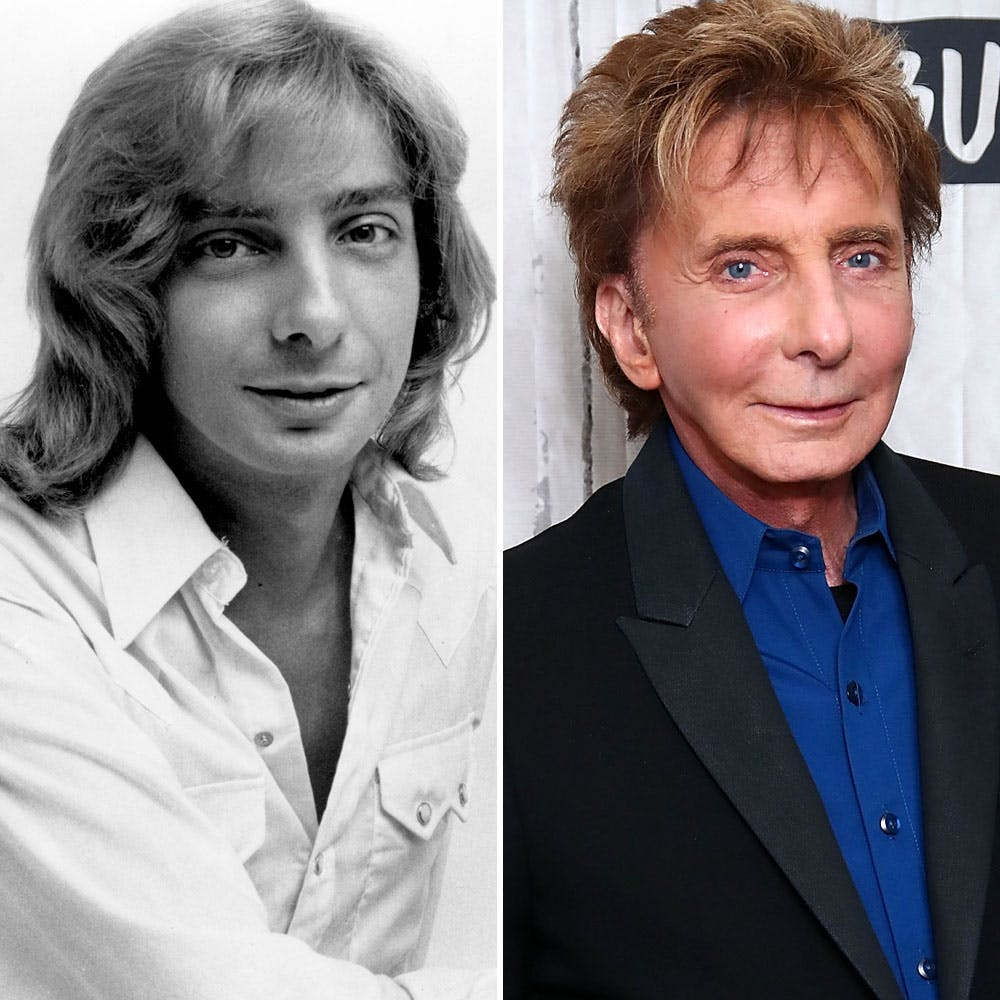 has barry manilow had plastic surgery photo - 1