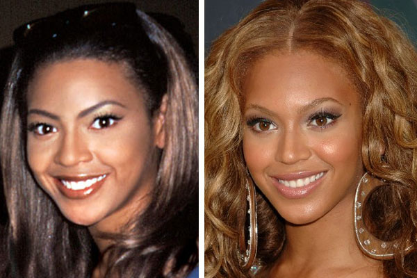 has beyonce had plastic surgery photo - 1