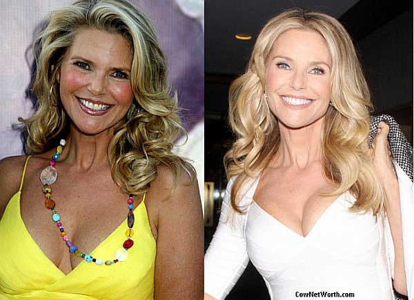 has christie brinkley had plastic surgery photo - 1