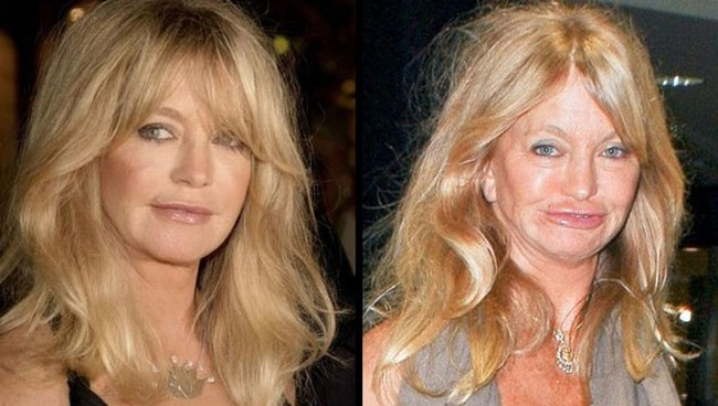has goldie hawn had plastic surgery photo - 1