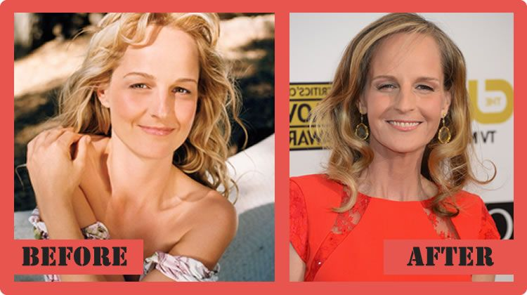 has helen hunt had plastic surgery photo - 1