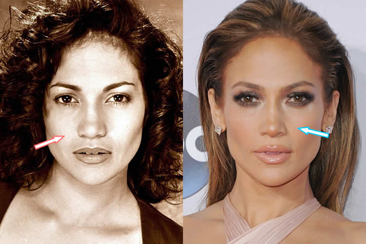 has jlo had plastic surgery photo - 1