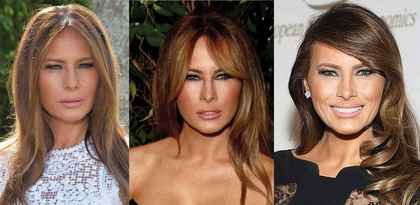 has melania trump had plastic surgery photo - 1
