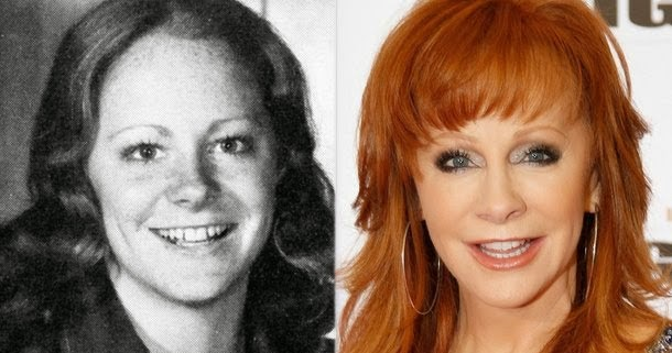 has reba mcentire had plastic surgery photo - 1