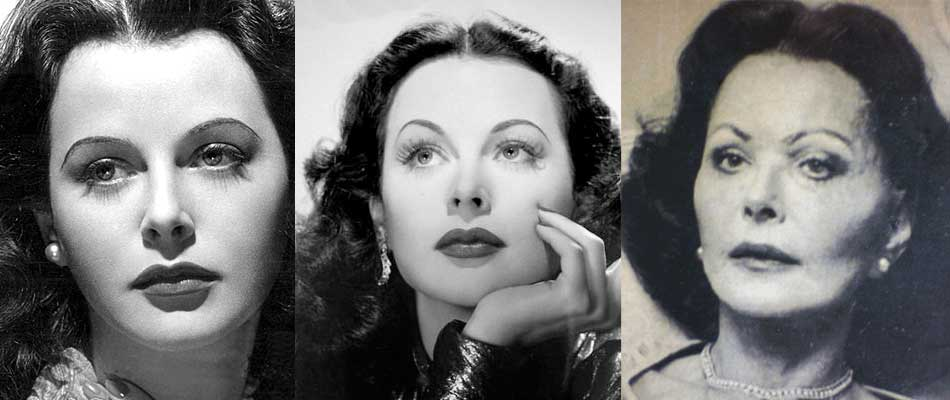 hedy lamarr plastic surgery photo - 1
