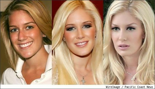 heidi before and after plastic surgery photo - 1