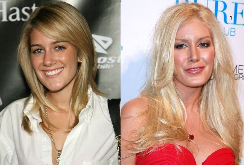 heidi montag before and after cosmetic surgery photo - 1