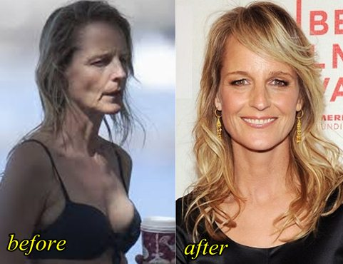 helen hunt plastic surgery photo - 1