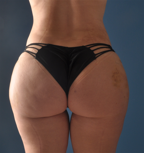 hip cosmetic surgery photo - 1