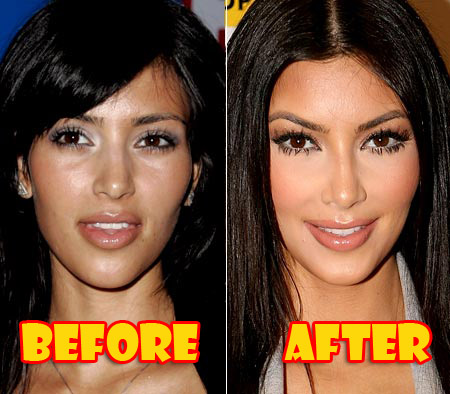 how much is facial plastic surgery photo - 1