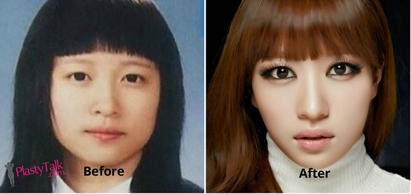 how much is plastic surgery photo - 1
