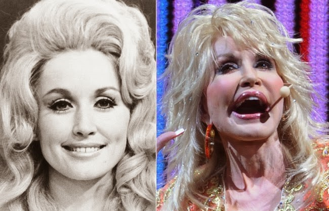 how much plastic surgery has dolly parton had photo - 1