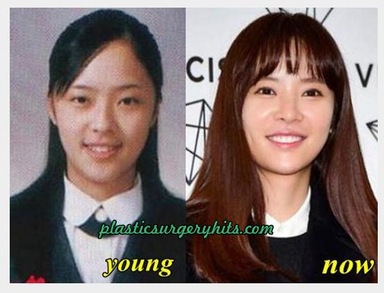 hwang jung eum plastic surgery photo - 1