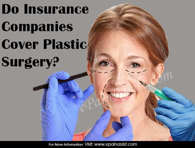 insurance that covers plastic surgery photo - 1