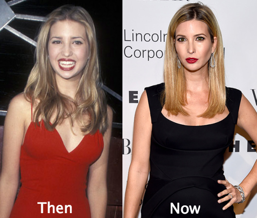 ivanka before and after plastic surgery photo - 1