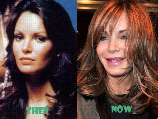 jacqueline smith plastic surgery photo - 1