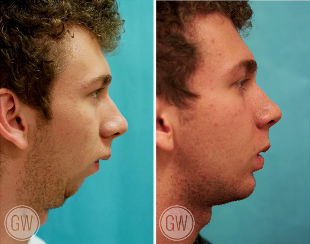 jaw plastic surgery photo - 1