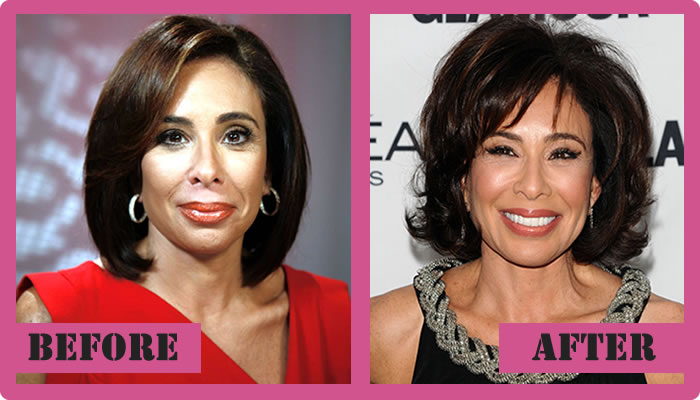 jeanine pirro plastic surgery photo - 1