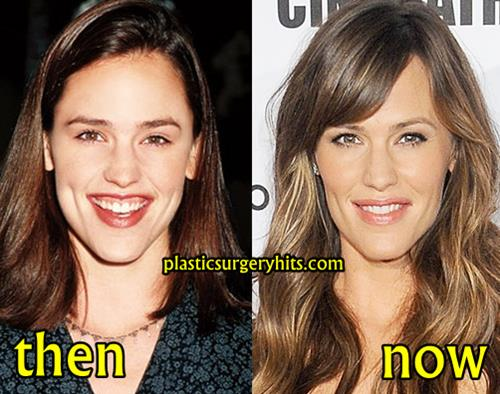 jennifer garner plastic surgery photo - 1