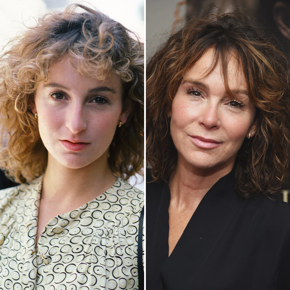 jennifer grey plastic surgery photo - 1
