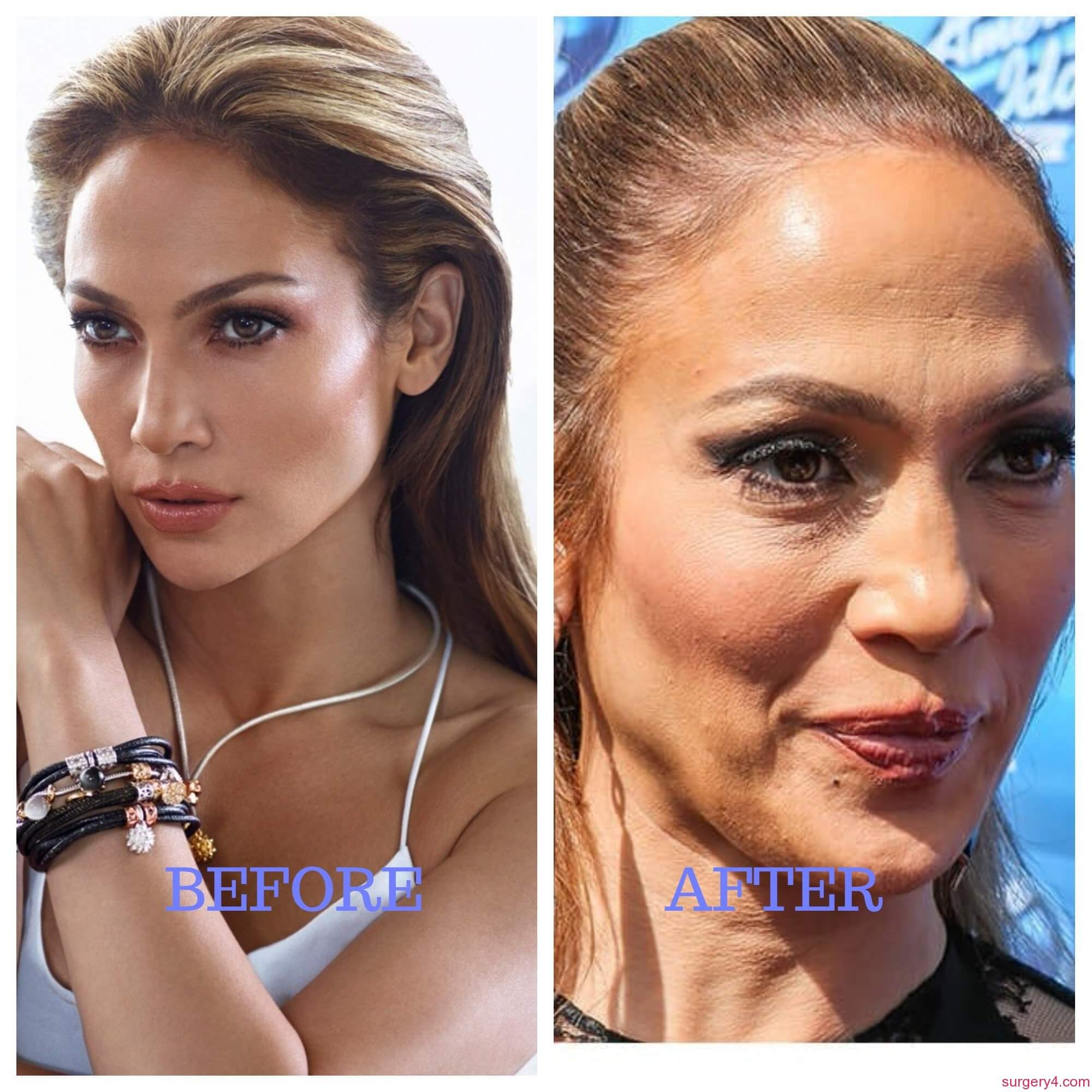 jennifer lopez plastic surgery photo - 1