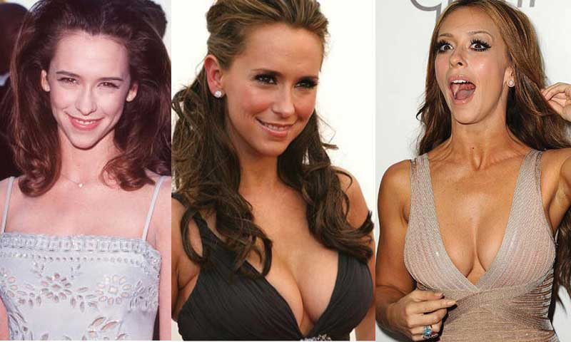 jennifer love hewitt plastic surgery photo - 1