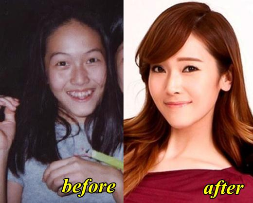 jessica jung plastic surgery photo - 1