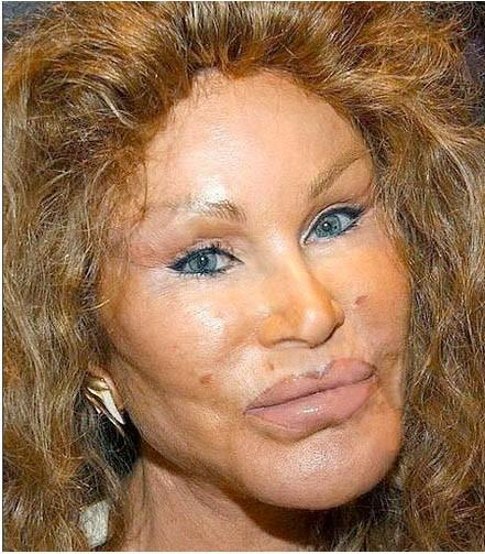 jocelyn wildenstein plastic surgery photo - 1