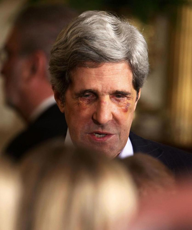john kerry plastic surgery photo - 1