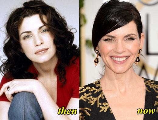 julianna margulies plastic surgery photo - 1