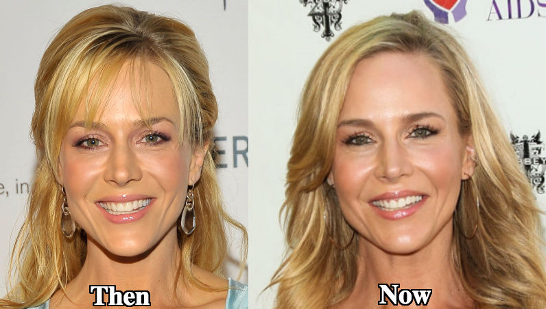 julie benz plastic surgery photo - 1