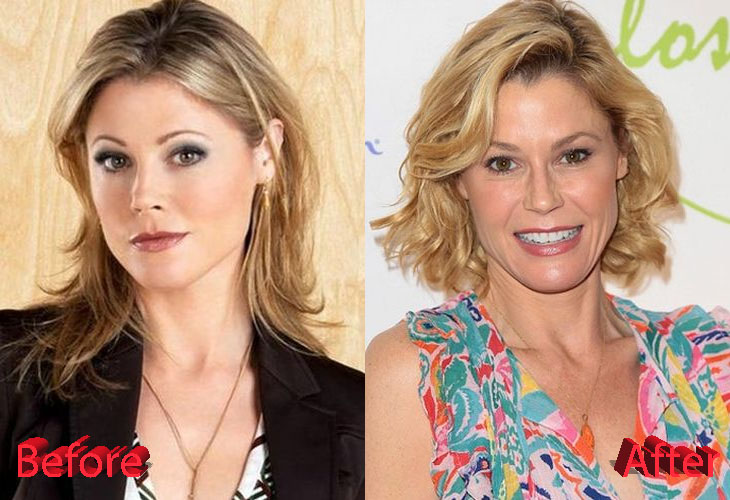 julie bowen plastic surgery 2017 photo - 1