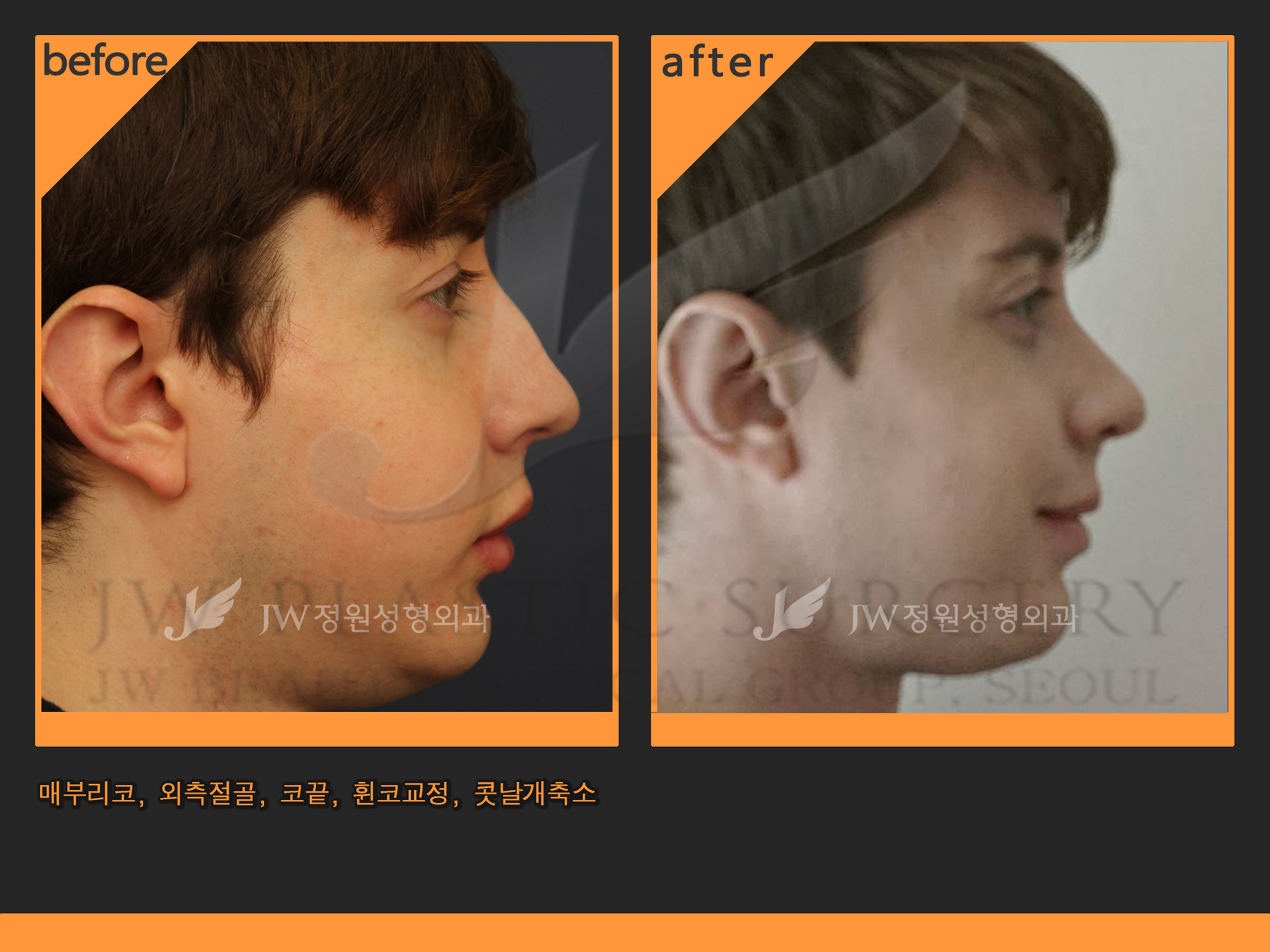 jw plastic surgery photo - 1
